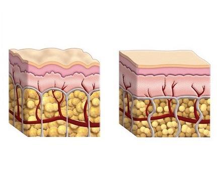 como se forma celulitis