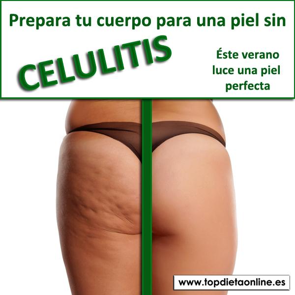 imagenes de piel con celulitis