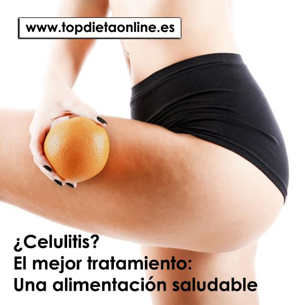 ¿Celulitis? El mejor tratamiento: Una alimentación saludable